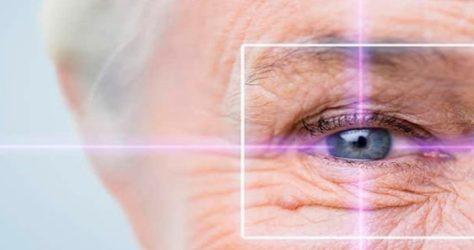 procedimentos-cirurgicos-cirurgia-de-glaucoma-min